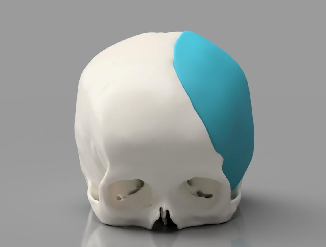 Paraná Clínicas e Hospital Santa Cruz utilizam moderna técnica em cirurgia de reconstrução de crânio
